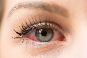 dry eye-min 710